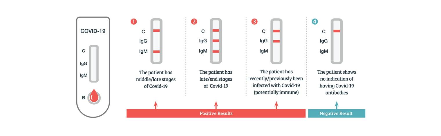 Covid-19-Antibody-test-results-diagram