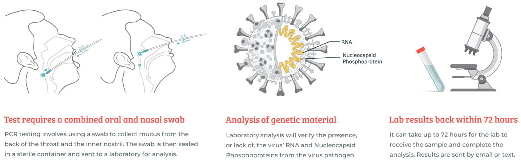 What to expect PCR test